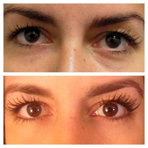 imagenes cosmetic miami latisse before and after yelp