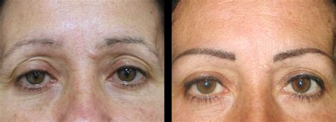 tattoo eyebrows after a week cosmetic and eyebrow feathering tattoo in sydney