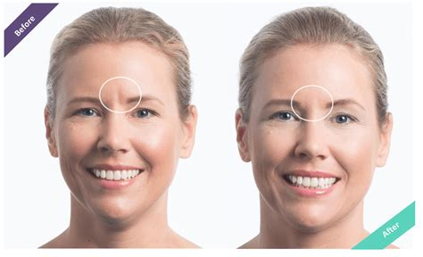 Where Your Wrinkle Filler Gets Injected Podcast by Best Wrinkle Filler Botox Alternative Hides Frown Lines