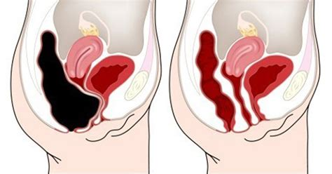 Stool Not Passing Completely by Press This Point On Your Belly To Remove Pounds Of Toxins From Your Colon David Avocado Wolfe