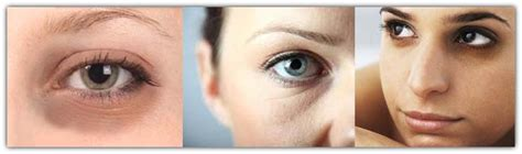 Lingkar Mata obat kantung mata penghilang kantung mata