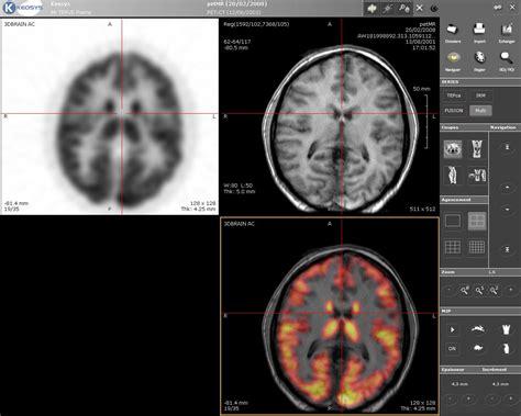imagenes medicas resonancia magnetica imagen por resonancia magn 233 tica