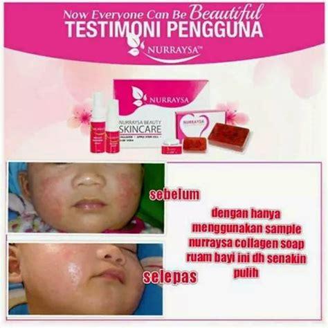 Review Sabun K mujahidah solehah nurraysa skincare review