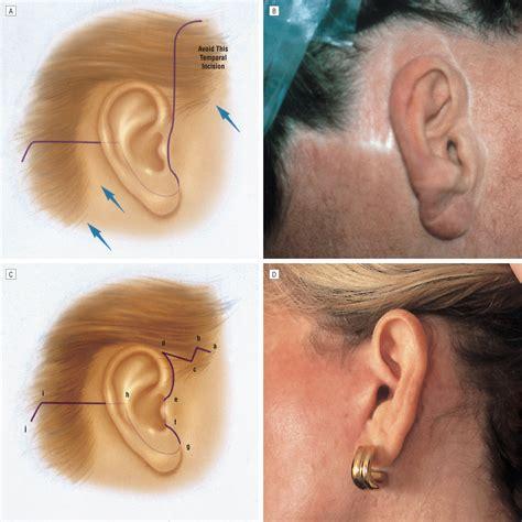 occipital hair tuft images occipital hair tuft images hair disorders clinical gate