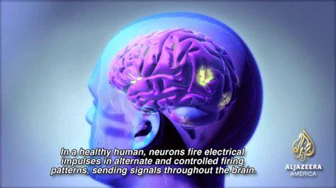 can a die from a seizure this is your brain on cannabidiol al jazeera america