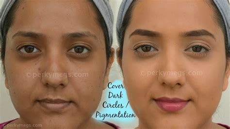 before and after pictures of pigmentation on skin how to cover dark circles acne and pigmentation for