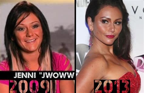 jenni jwoww before and after plastic surgery breast jwoww and her battle with botox before and afters