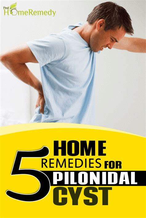 5 simple home remedies for pilonidal cyst