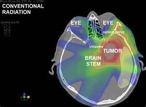 Proton Therapy For Brain Cancer Brain Tumours Www Brain Cancer Eu