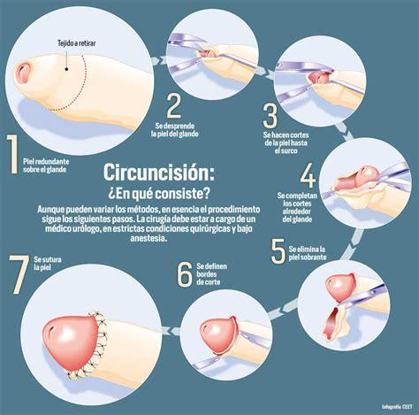 cortar prepucio circuncision eltiempo
