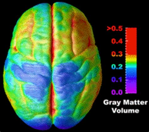 Compress Pdf To Gif | time lapse movies of brain development supplementary data
