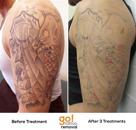 half sleeve tattoo removal better than 60 fading after 3 laser removal