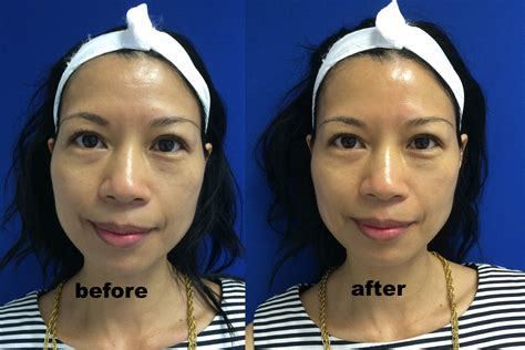 A Before hydrafacial md 174 before and after in heels