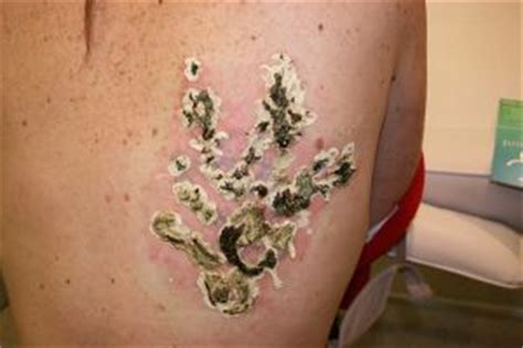 laser tattoo removal itching scar zone
