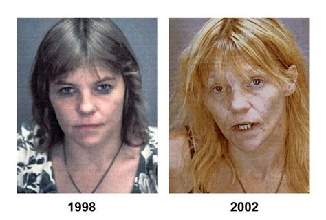Meth Detox Medication by 1000 Images About Drogas On Faces Of Meth