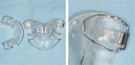 apparecchi dentali mobili apparecchio mobile ortodontico ai denti