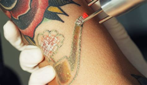 starting a tattoo removal business q switched laser procedure new look laser college