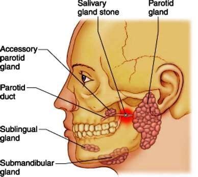 Detox With Paratid by Blocked Salivary Gland Salivary Image Health