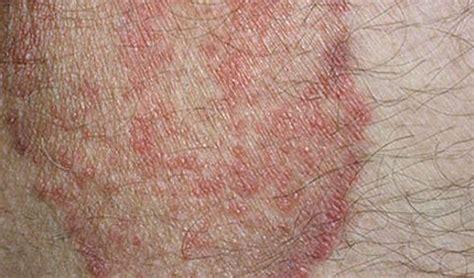rash on groin groin rash pimple sore line heat rash around groin fold