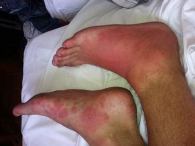 painful red skin rash on foot