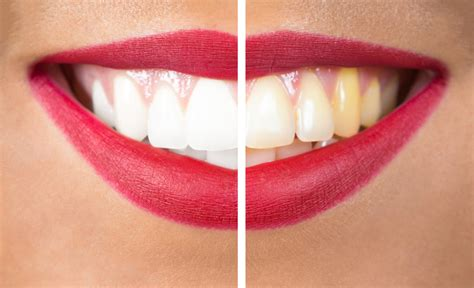 skinny  teeth whitening city square dental