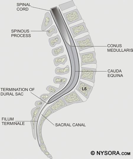 section filum terminale coccygeal ligament filum terminale