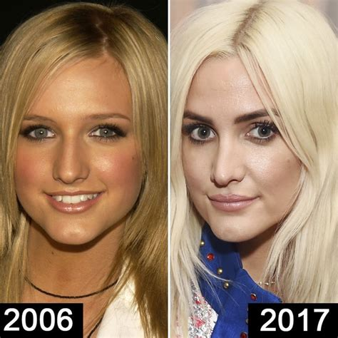 Ashlee Doing The Rounds by Ashlee Plastic Surgery Nose Before And After