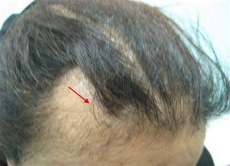losing patches of hair scalp biopsy and diagnosis of common hair loss problems intechopen