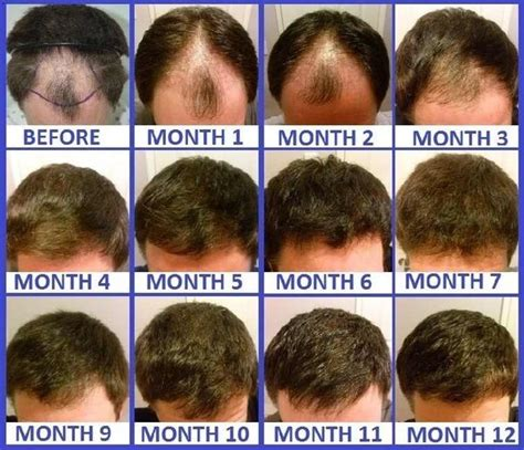 does hairline take longer to grow in after chemo how long does it take for hair to grow after a hair