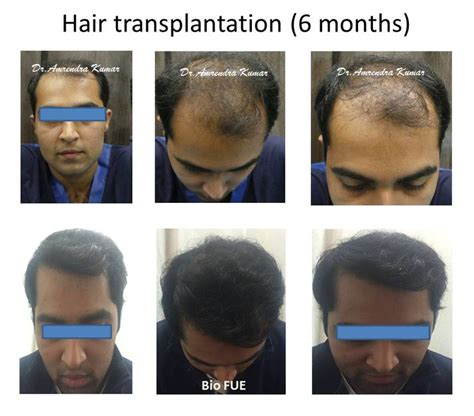 hair transplant month by month pictures hair transplant month by month pictures 11 best images