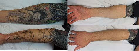 tattoo removal with salt tattoos removal tattoo themes idea