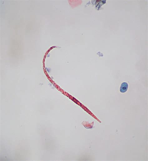 Worms In Stool Treatment by Worm In Wee Wee Urine Specimen With A Worm Hookworm Mayb Flickr
