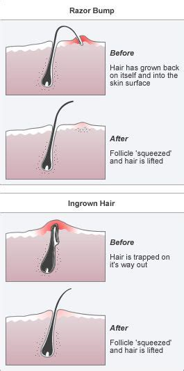 how to remove a hair bump from a womens private 17 best ideas about ingrown hair on neck on pinterest