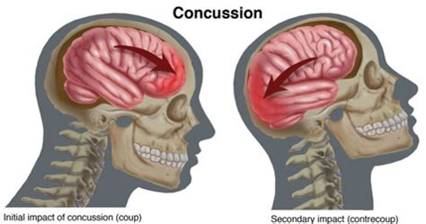 can concussions cause mood swings post concussion syndrome vasta performance training and