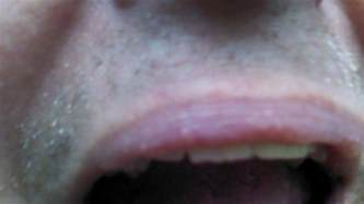 flesh colored bump on lip i small white bumps the skin lining my lip