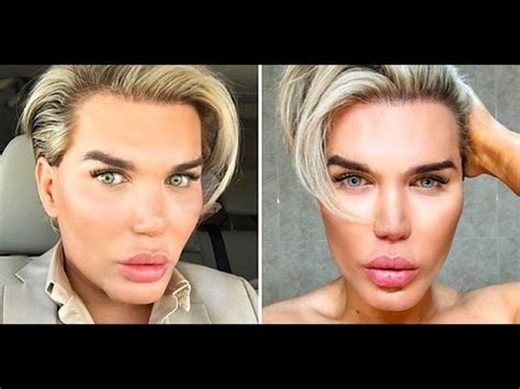 permanent eye color surgery rodrigo alves permanent eye color change journey