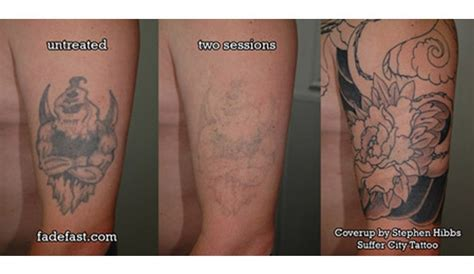how well does tattoo removal work nwa dealpiggy 80 laser removal or ink reduction