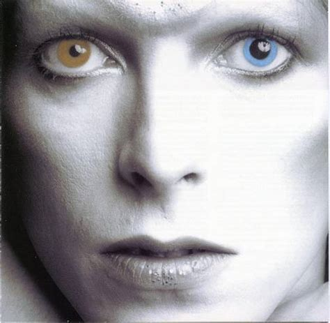 david bowie eye color how did david bowie get two different colored