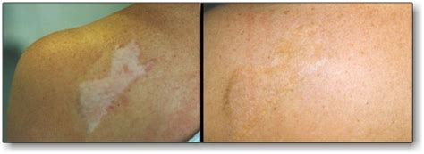 tattooing over scar tissue other permanent cosmetic procedures society for
