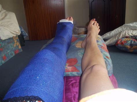 broken leg gokookygo metasearch image broken leg cast