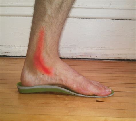 running shoes for posterior tibial tendonitis posterior tibial tendonitis running shoes 28 images 25