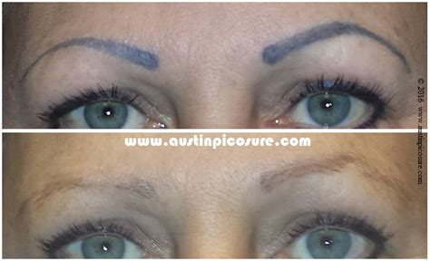 eyebrow tattoo removal before and after before after photos austinpicosure a