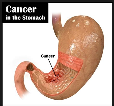 stomach tumor stomach cancer symptoms