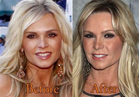 alexis bellino says andy cohen didnt read her full email tamra barney plastic surgery before and after boob job botox