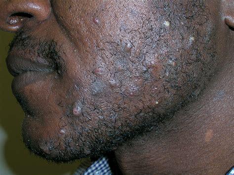 black bump on razor bumps on neck razor bumps for black