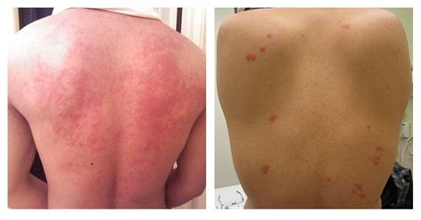 bed bug welts bed bugs vs hives how to tell if it s just a bite or an allergic reaction