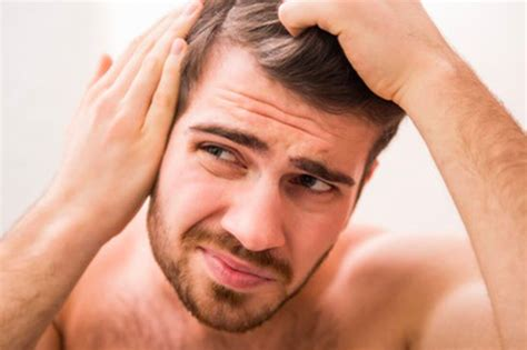 male pattern baldness quiz male pattern baldness test find out your risk of