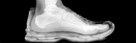 find the right running shoe find the right running shoes for you mercy health glass