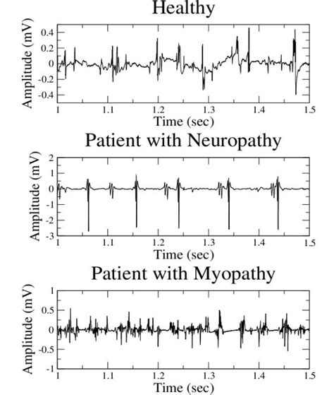 interference pattern analysis emg clinical quantitative electromyography intechopen