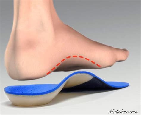 flat foot shoe insole for flat solution for pes planus